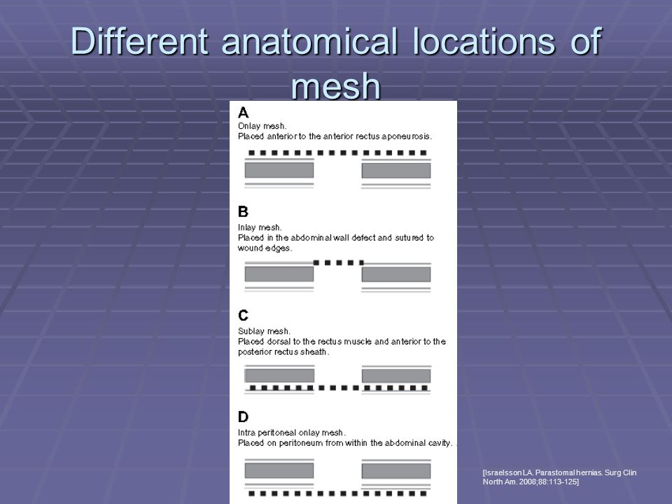 Different anatomical locations of mesh