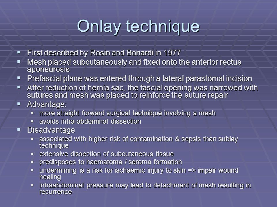 Onlay technique First described by Rosin and Bonardi in 1977