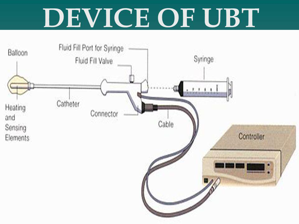 DEVICE OF UBT