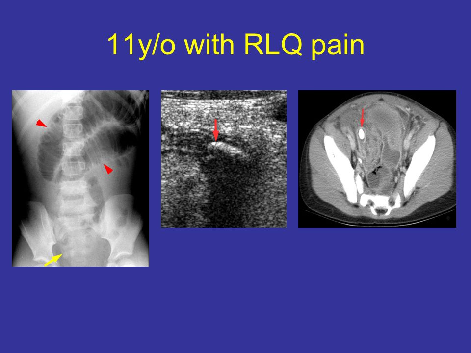 11y/o with RLQ pain