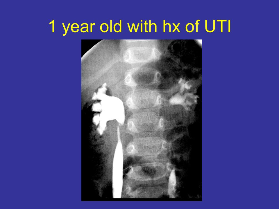 1 year old with hx of UTI