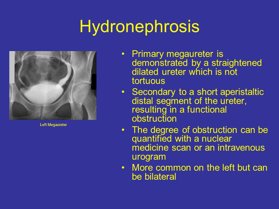 Hydronephrosis Primary megaureter is demonstrated by a straightened dilated ureter which is not tortuous.