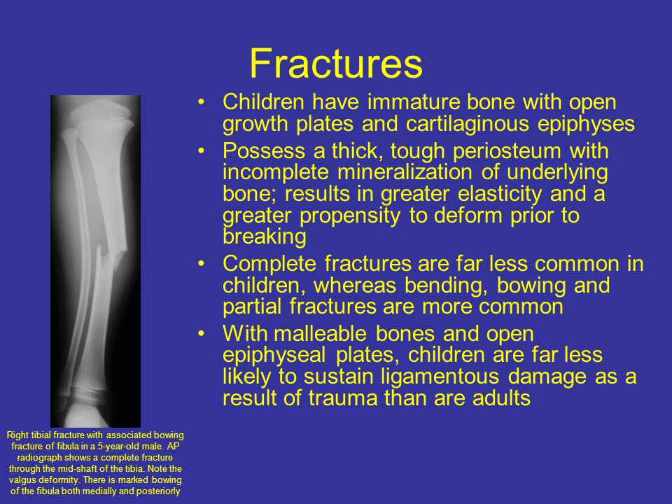 Fractures Children have immature bone with open growth plates and cartilaginous epiphyses.