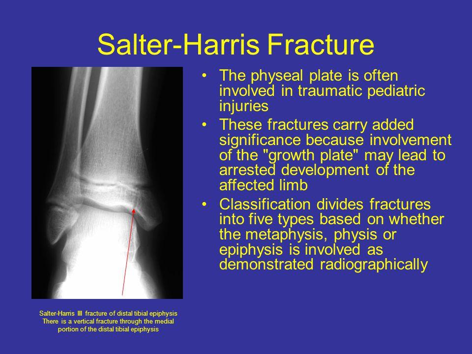 Salter-Harris Fracture