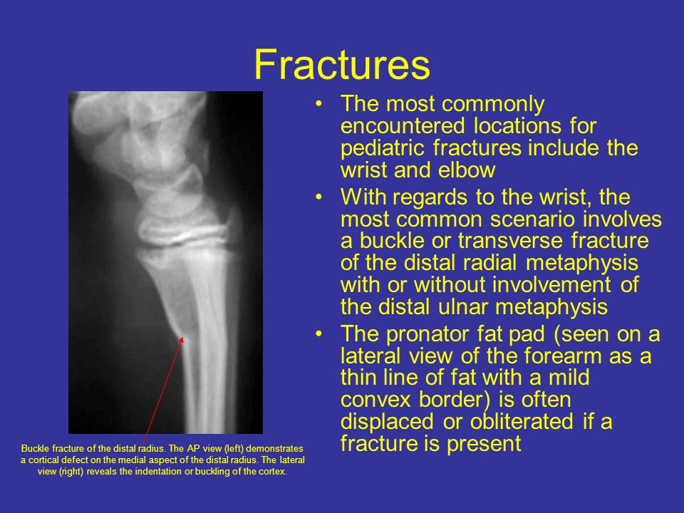 Fractures The most commonly encountered locations for pediatric fractures include the wrist and elbow.