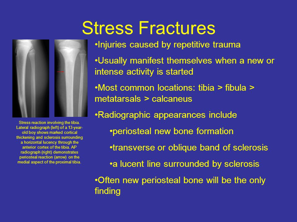 Stress Fractures Injuries caused by repetitive trauma