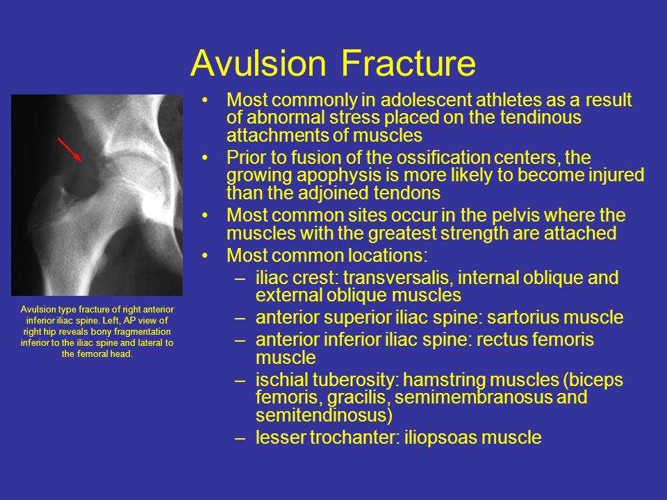 Avulsion Fracture Most commonly in adolescent athletes as a result of abnormal stress placed on the tendinous attachments of muscles.
