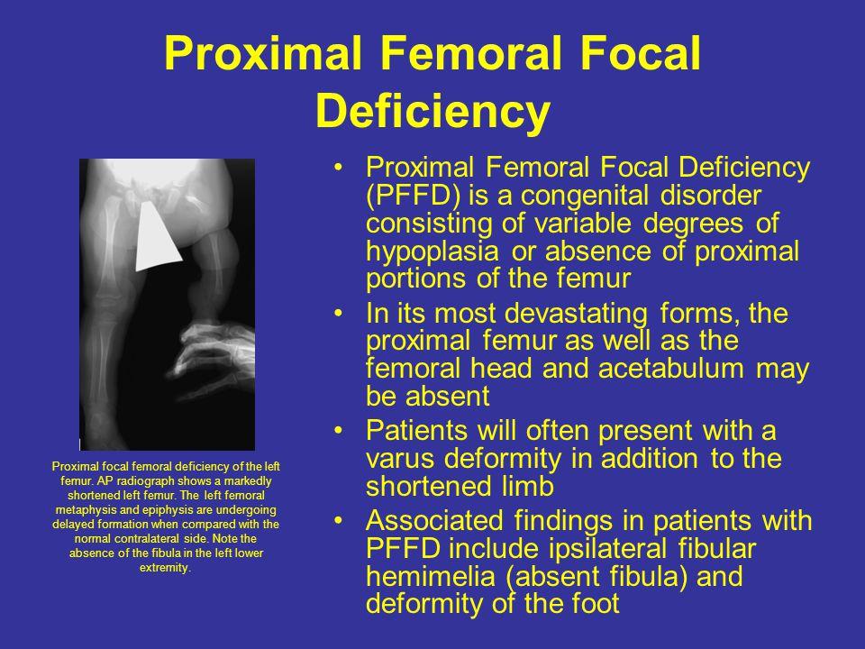 Proximal Femoral Focal Deficiency