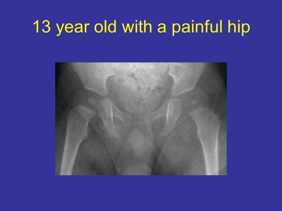 13 year old with a painful hip