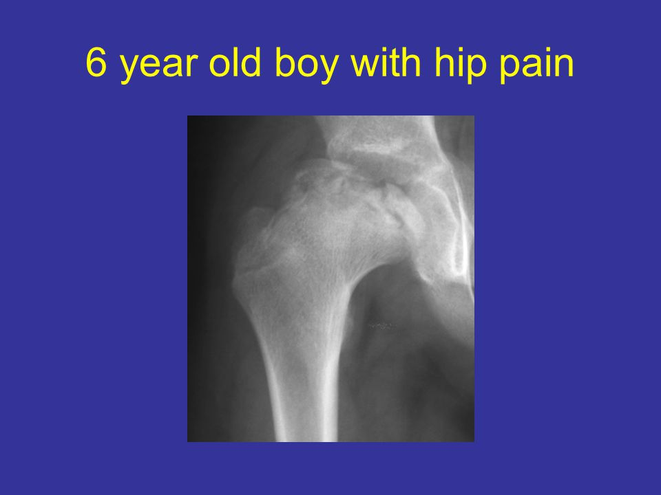 6 year old boy with hip pain