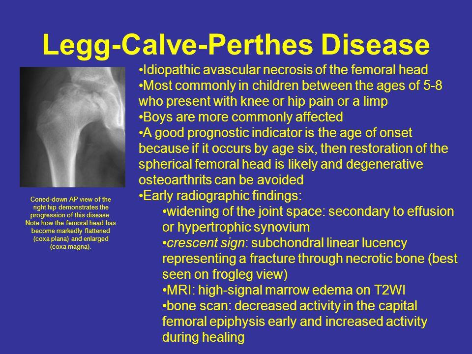 Legg-Calve-Perthes Disease