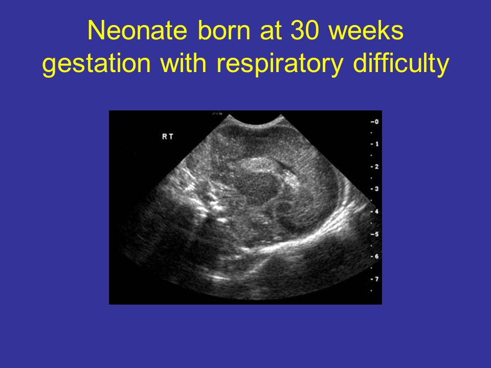Neonate born at 30 weeks gestation with respiratory difficulty
