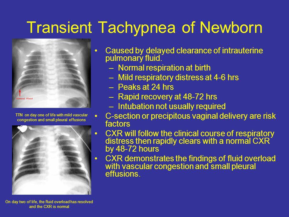 Transient Tachypnea of Newborn