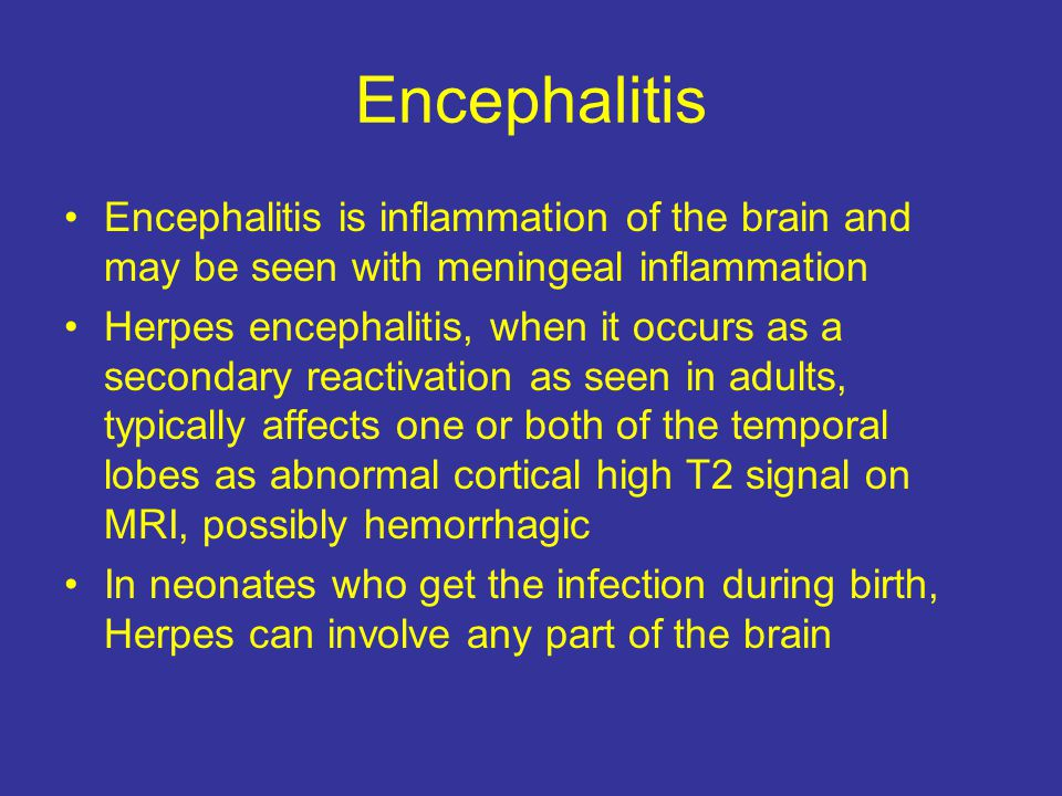 Encephalitis Encephalitis is inflammation of the brain and may be seen with meningeal inflammation.