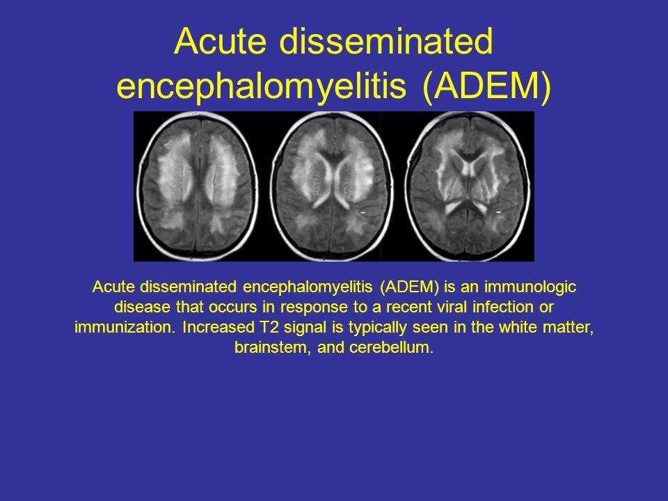 Acute disseminated encephalomyelitis (ADEM)