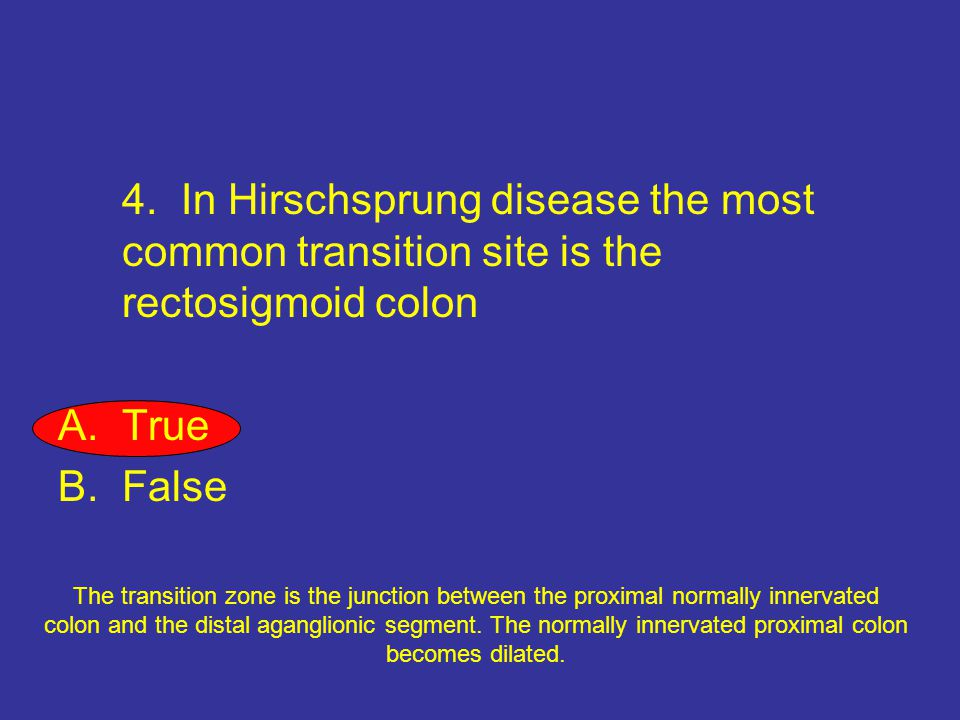 4. In Hirschsprung disease the most common transition site is the rectosigmoid colon
