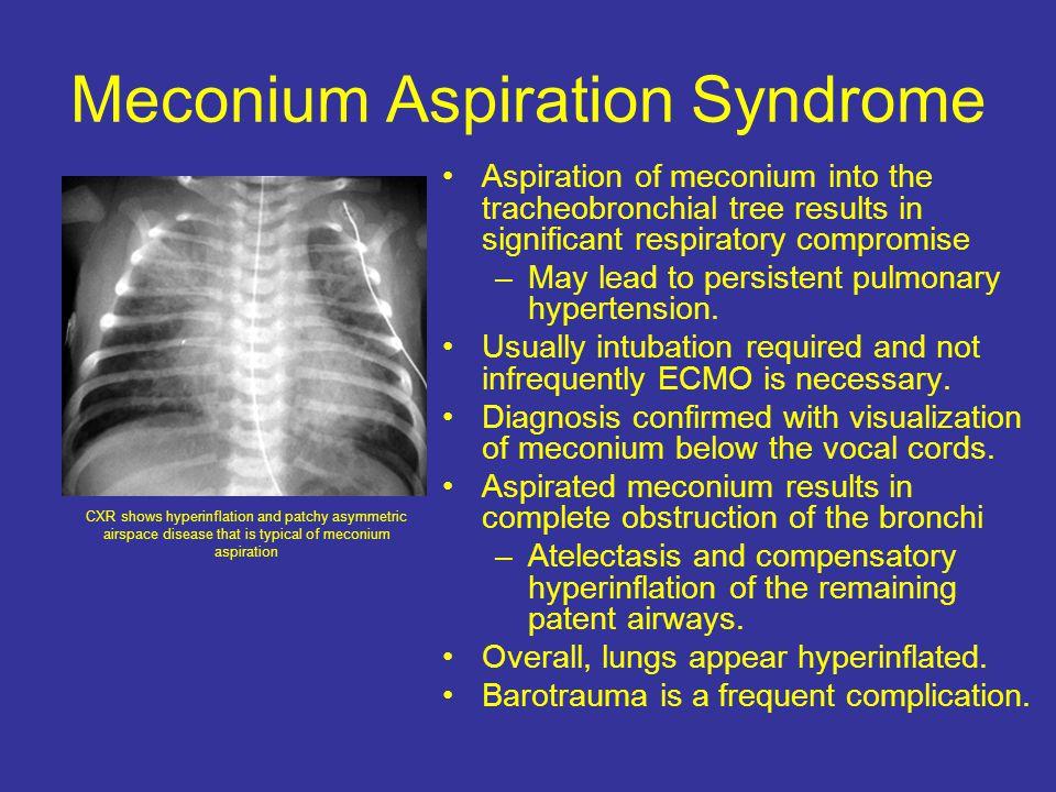 Meconium Aspiration Syndrome