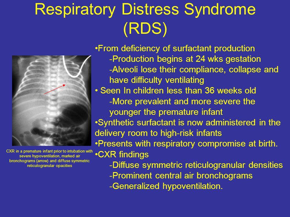 Respiratory Distress Syndrome (RDS)