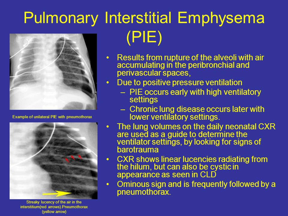 Pulmonary Interstitial Emphysema (PIE)
