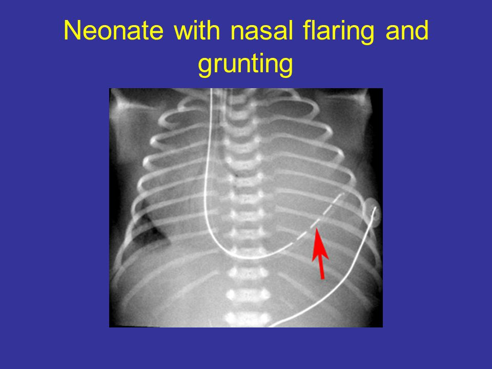 Neonate with nasal flaring and grunting