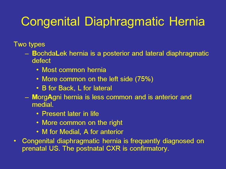 Congenital Diaphragmatic Hernia