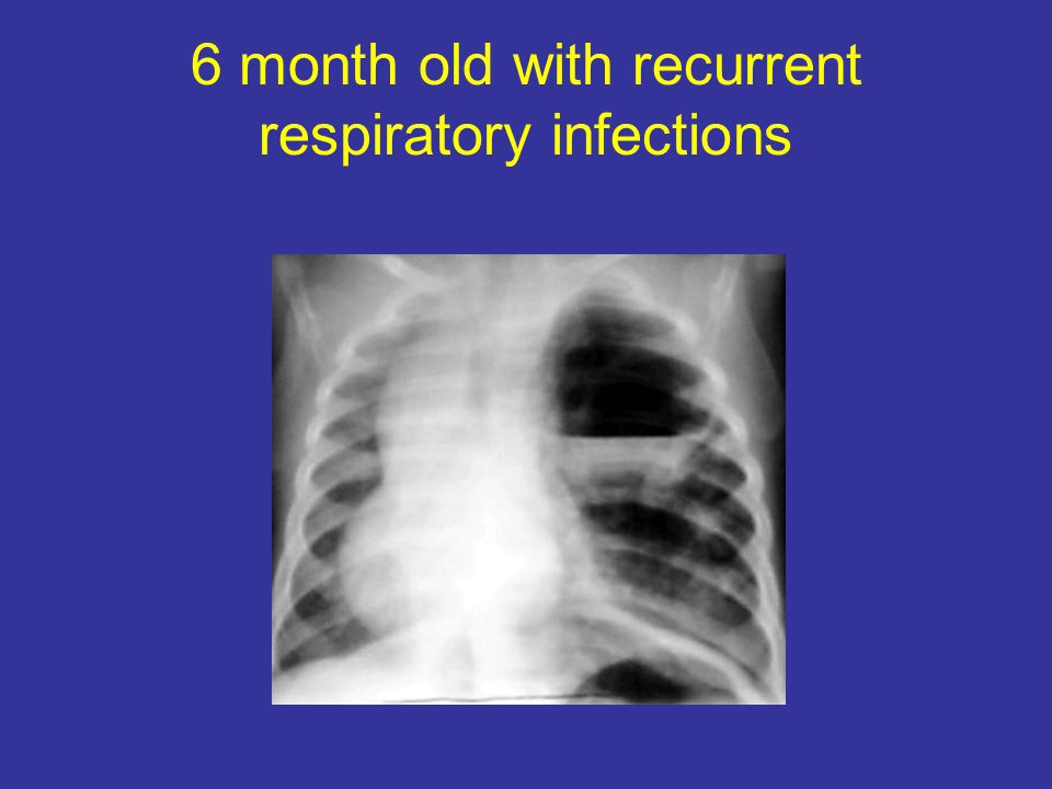 6 month old with recurrent respiratory infections