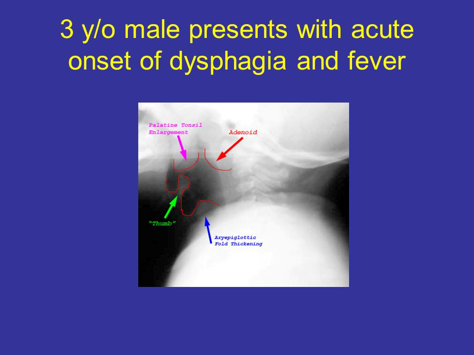 3 y/o male presents with acute onset of dysphagia and fever