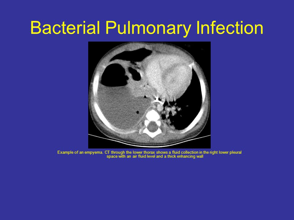 Bacterial Pulmonary Infection