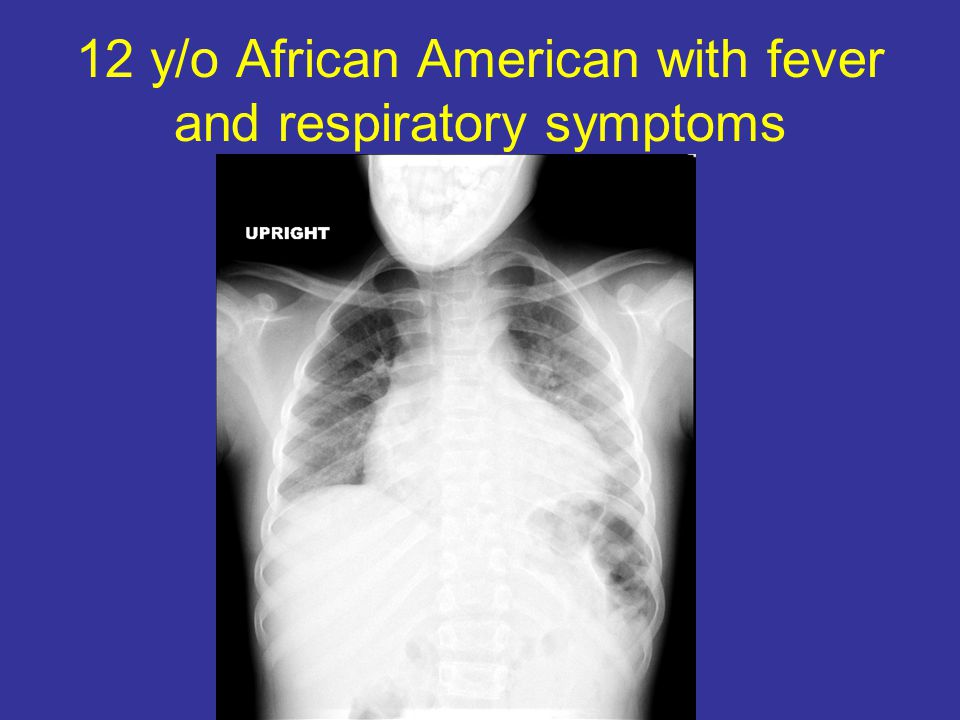 12 y/o African American with fever and respiratory symptoms