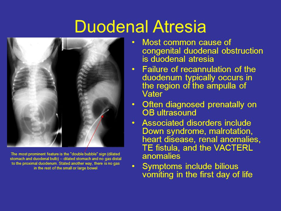 Duodenal Atresia Most common cause of congenital duodenal obstruction is duodenal atresia.