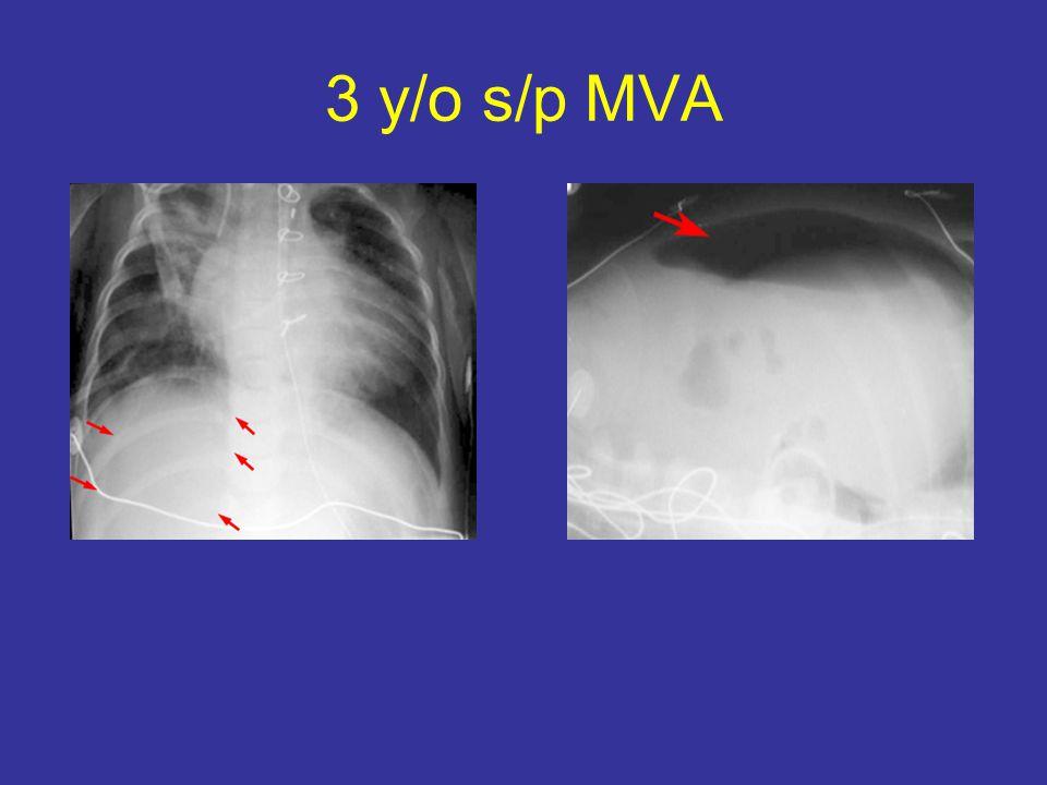 3 y/o s/p MVA
