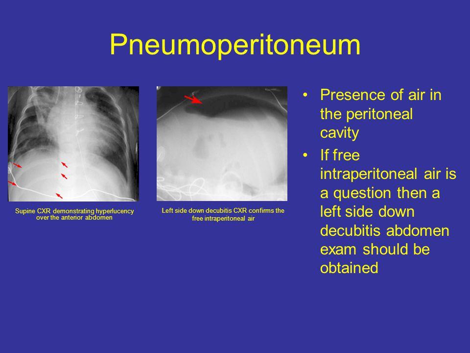 Pneumoperitoneum Presence of air in the peritoneal cavity