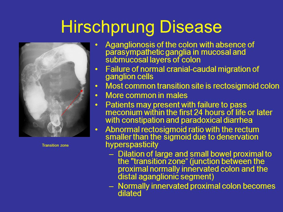 Hirschprung Disease Aganglionosis of the colon with absence of parasympathetic ganglia in mucosal and submucosal layers of colon.