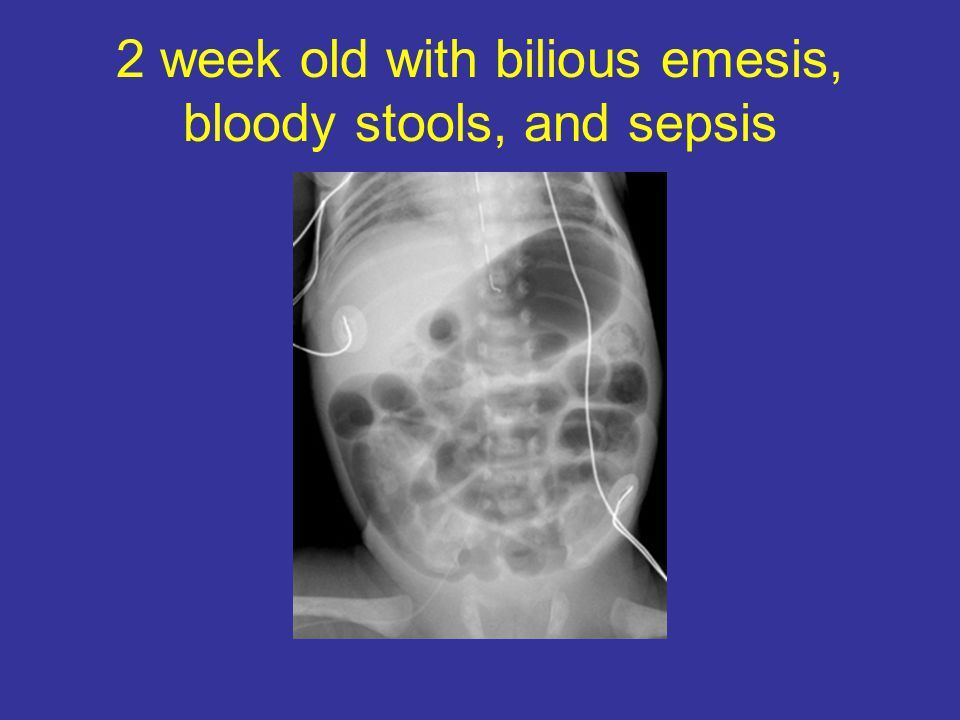 2 week old with bilious emesis, bloody stools, and sepsis