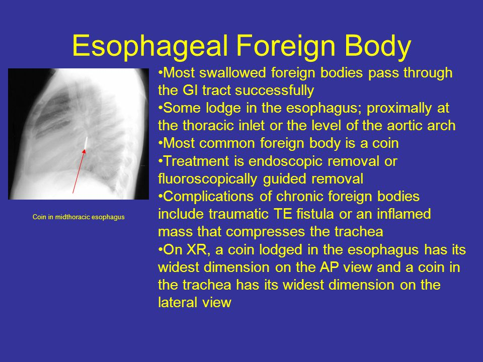 Esophageal Foreign Body
