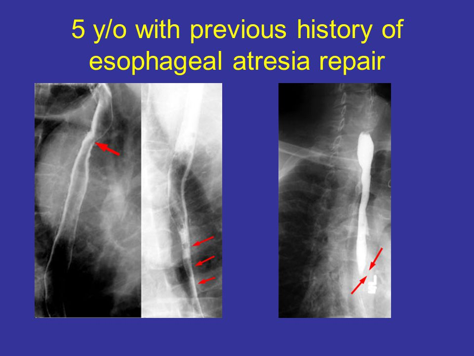 5 y/o with previous history of esophageal atresia repair