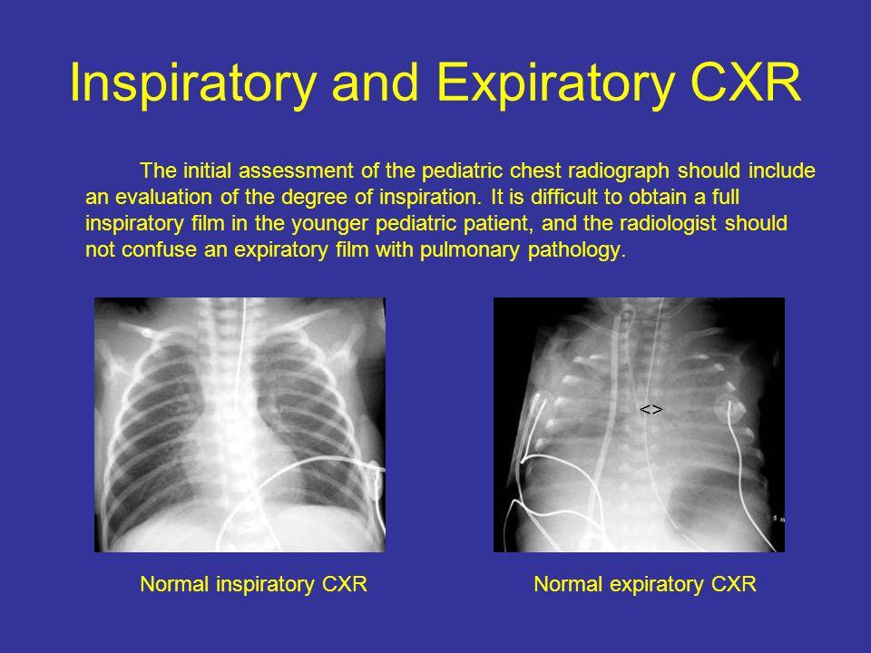 Inspiratory and Expiratory CXR