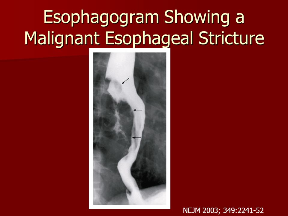 Esophagogram Showing a Malignant Esophageal Stricture