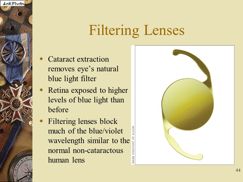 Filtering Lenses Cataract extraction removes eye's natural blue light filter. Retina exposed to higher levels of blue light than before.