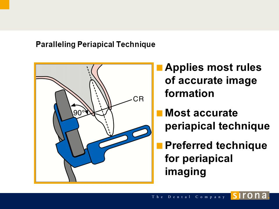Paralleling Periapical Technique