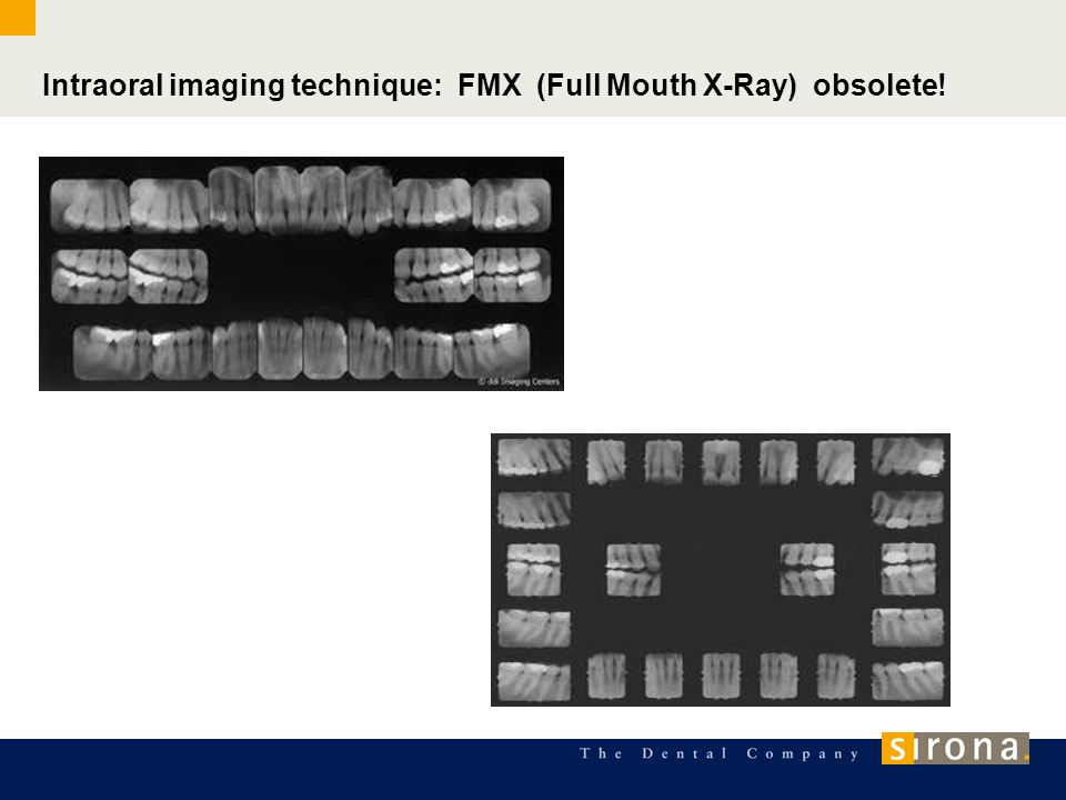 Intraoral imaging technique: FMX (Full Mouth X-Ray) obsolete!