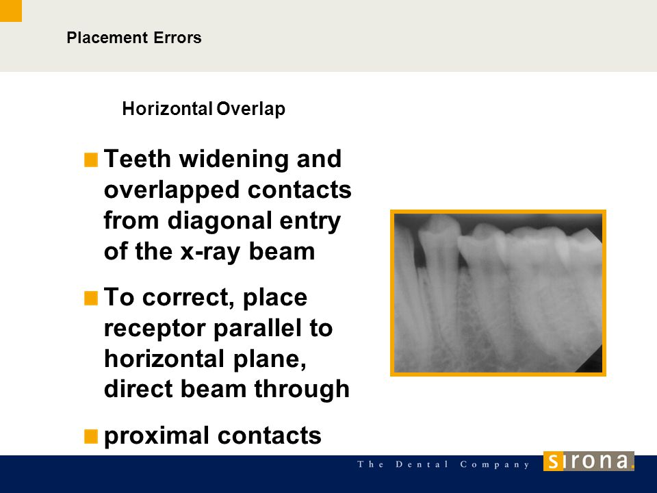 Placement Errors Horizontal Overlap. Teeth widening and overlapped contacts from diagonal entry of the x-ray beam.