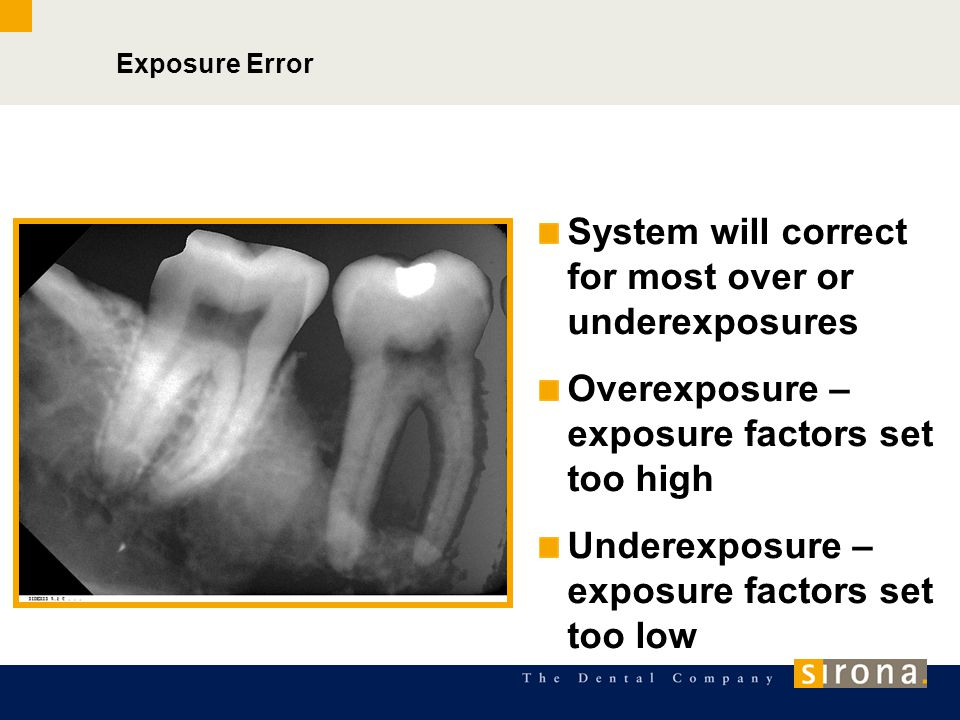 System will correct for most over or underexposures