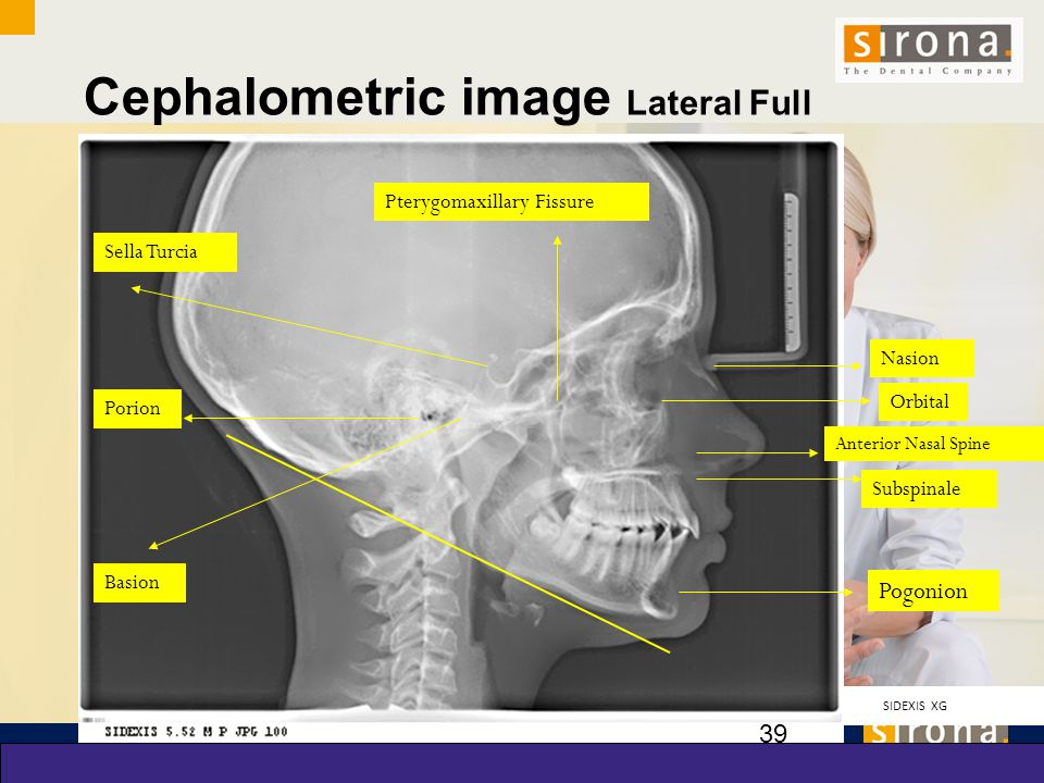 Cephalometric image Lateral Full Skull Ceph View with Landmarks