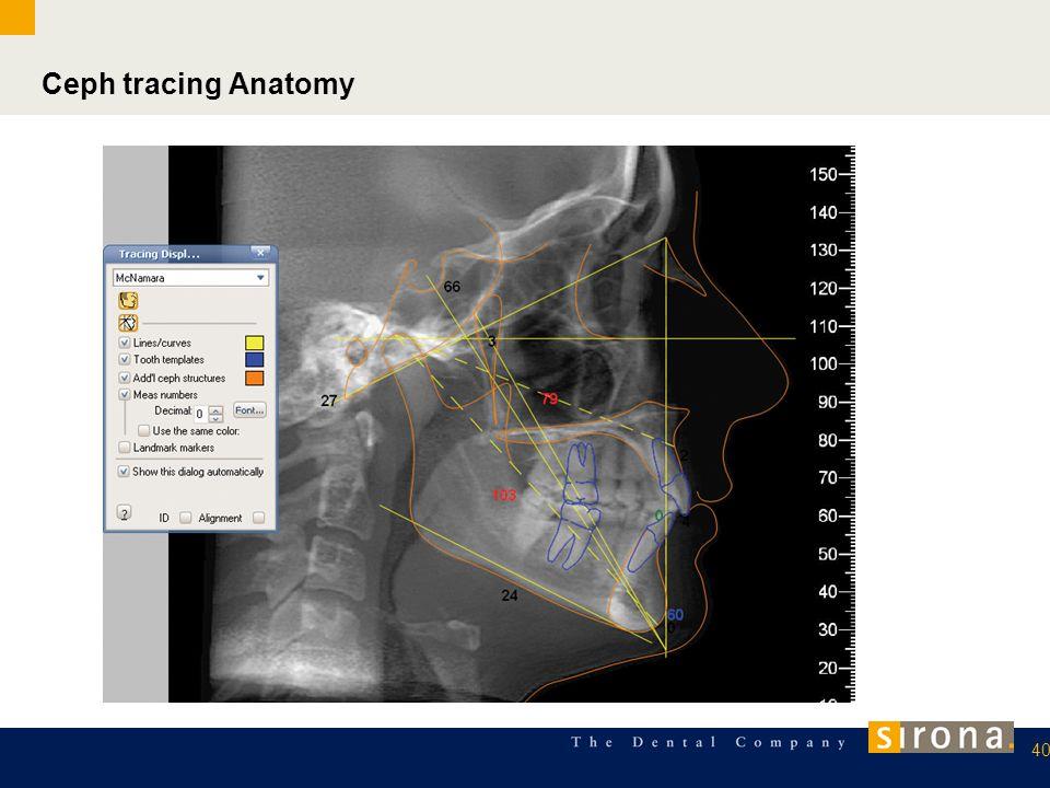 Ceph tracing Anatomy 40