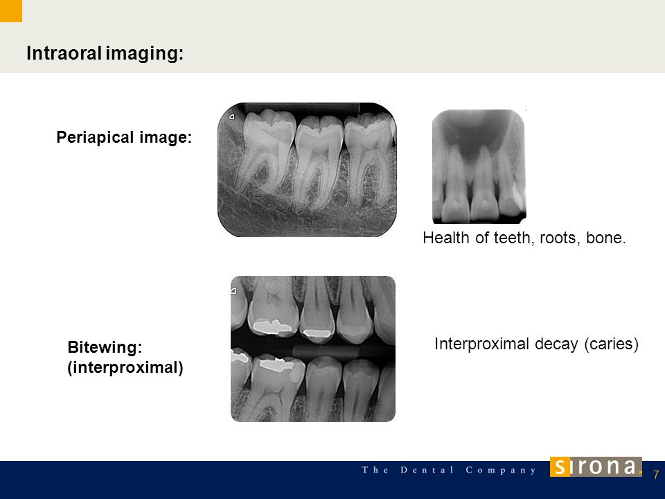 Intraoral imaging: Periapical image: Health of teeth, roots, bone.