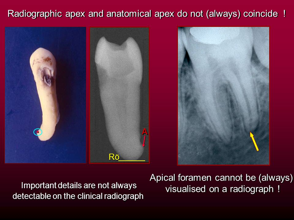 . Radiographic apex and anatomical apex do not (always) coincide !