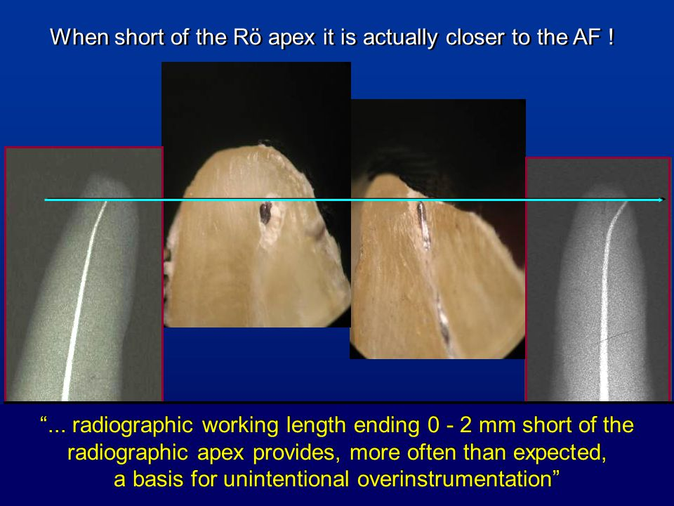 When short of the Rö apex it is actually closer to the AF !