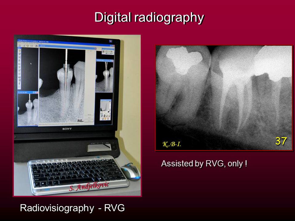 Radiovisiography - RVG