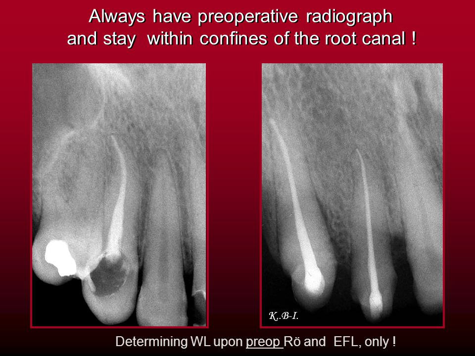 Always have preoperative radiograph